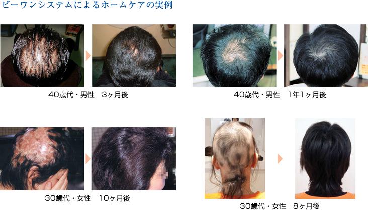 驚異的な発毛結果